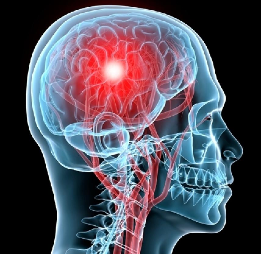 An+image+shows+how+a+concussion+affects+your+brain.
