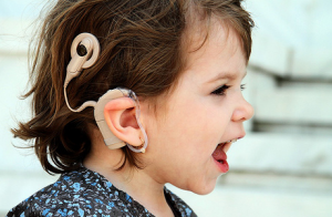 Cochlear Implant: Yay or Nay